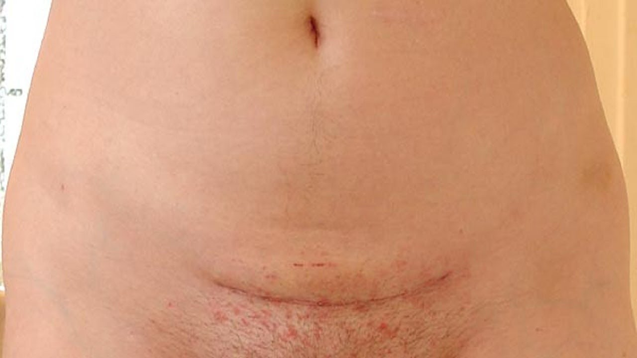 How To Get Rid Of Ingrown Hairs On A Line