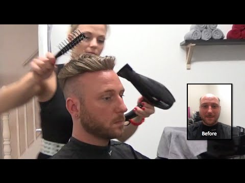 Hair Replacement FITTING VIDEO (Dan) – Hair loss, Baldness ...