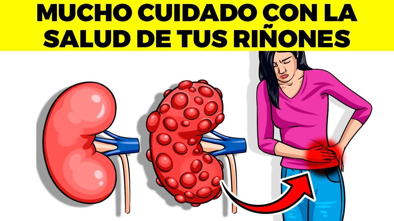13 malos hábitos que dañan tus riñones, llevan a enfermedad renal crónica y fallo renal
