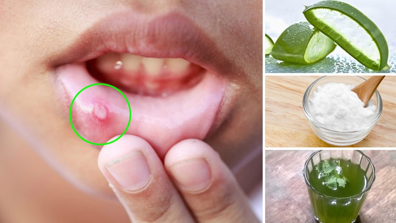 How to Get Rid of a Canker Sore Naturally at Home
