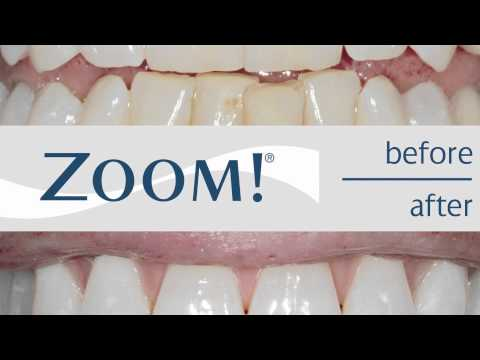 get-white-teeth-instantly-with-zoom-whitening-|-covington-smiles