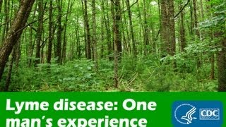 One Man's Experience with Lyme Disease
