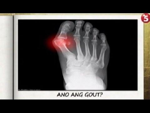 Sintomas, I-text Mo | Ano ang sanhi ng gout?