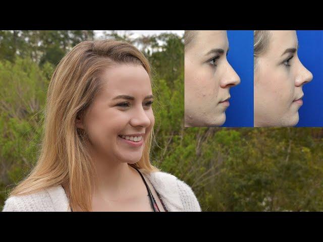 Megan's Rhinoplasty Transformation Story
