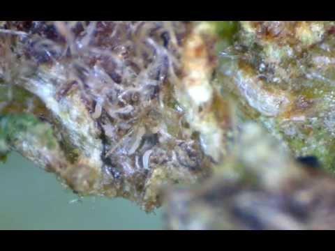 Phytoptus avellanae