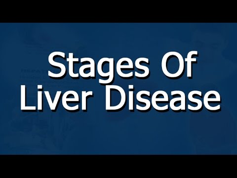 Liver Disease Stages - An Overview from YouTube · High Definition · Duration:  2 minutes  · 12.000+ views · uploaded on 7-2-2015 · uploaded by WS Westwood