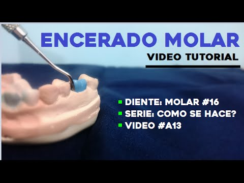 Encerado Dental: Primer Molar Superior (Parte 1/3) - YouTube