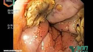 Кровотечение после лигирования вен пищевода