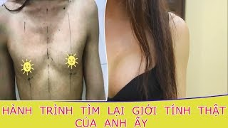 Cận cảnh quá trình nâng ngực chuyển giới từ nam sang nữ của Hot Girl Việt