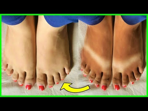100% Get Rid Of SUN TAN Instantly | Natural Home Remedy By Aisha Health With Beauty