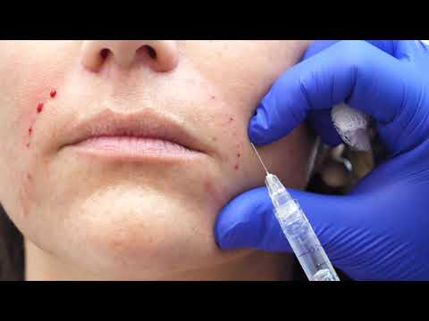Nasolabial Fold Fillers Pearlman Aesthetic Surgery