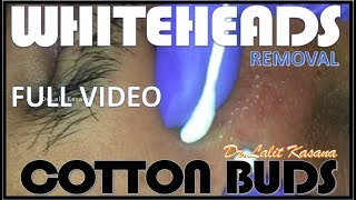 WHITEHEADS REMOVAL WITH COTTON BUDS FULL VIDEO