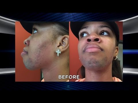 Woman Plagued by Excessive Facial Hair Returns with an Amazing Transformation