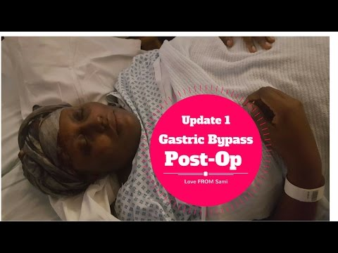 GOODBYE DIABETES!!! ¦¦ Post -Op Gastric Bypass Update 1 + Full body shot + Dumping syndrome (WLS)