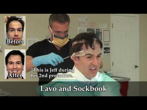 Best Fue Doctors For Men And Women In Palm Coast, Florida