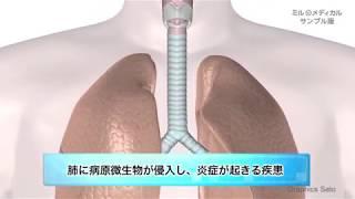肺炎/ミルメディカル 家庭の医学動画版
