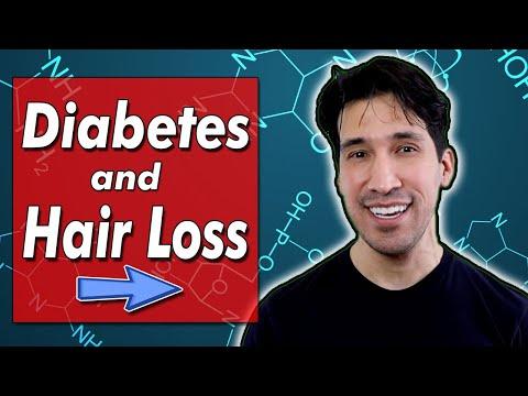 thinning-hair?-diabetes-&-hair-loss-explained