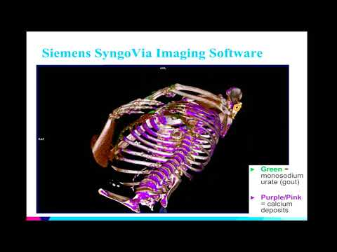 8th Annual TMII Symposium – 2018 – Session II – Cardiovascular Imaging – Sharon Barazani, BS