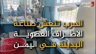 شاهد كيف أنعشت الحرب صناعة الاطراف العضوية البديلة في اليمن