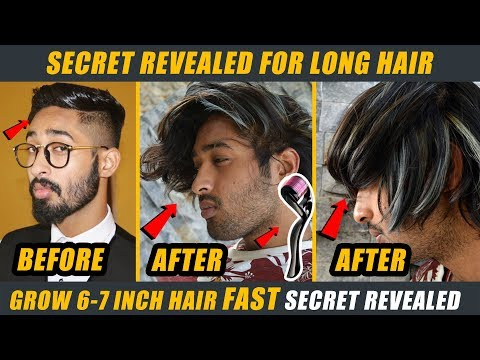 Secret Revealed How I Grow 7-8 Inch Long Hair Fast - Hacks for Hair Growth - - 동영상