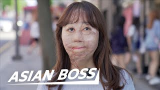 Meet The Korean Girl Who Survived 95% Burns | ASIAN BOSS