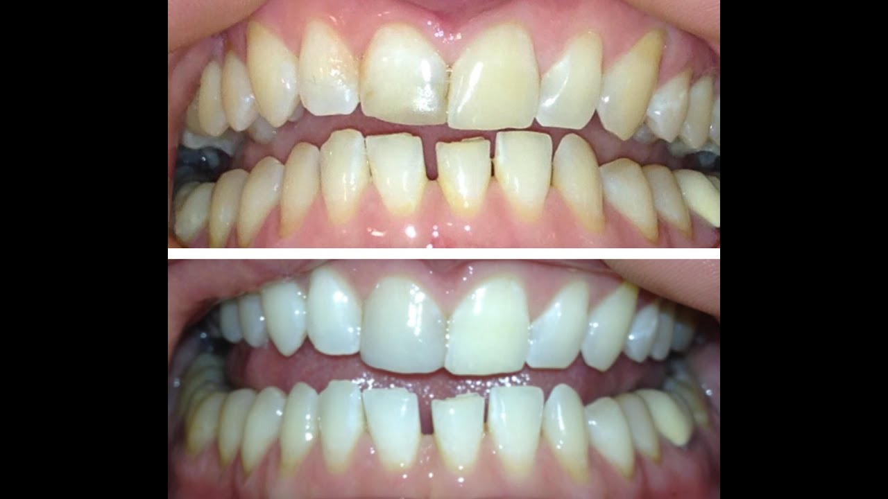oil pulling results how to plus my before and after results youtube. Black Bedroom Furniture Sets. Home Design Ideas