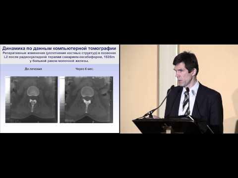 Эффективность радиофармацевтического лечения при метастазах в кости рака молочной железы