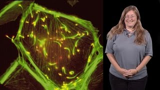julie theriot stanford hhmi 1 protein polymers crawling cells and comet tails