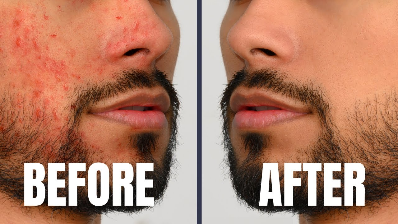Download 7 Skin Care Tricks Attractive/Handsome Guys Do DAILY