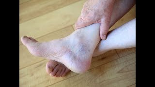 Стала разгибаться рука и вернулась чувствительность ног