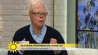 """Lasse hamnade mitt i eldhavet - """"Jag trodde att jag skulle dö"""" - Nyhetsmorgon (TV4)"""