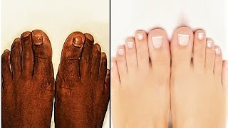 How to Do Pedicure at Home _ TAN REMOVAL __ Step by Step | DIY at Home |  SuperWowStyle