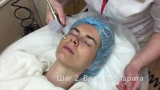 видео Безинъекционная биоревитализация: омоложение без уколов, как это делается