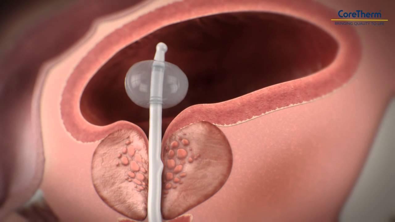 hyvling av prostata