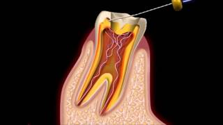 видео как лечить зубы
