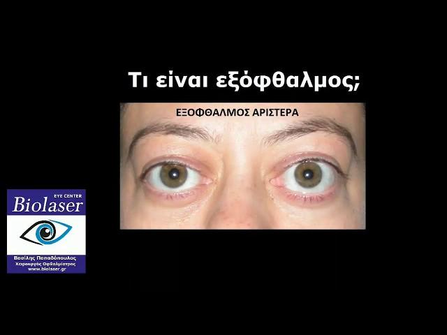 Εξόφθαλμος, Ξηροφθαλμία - BioLaser