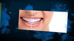 Newark Ohio Dentist - Moundbuilders General Dentistry - 740-344-1810