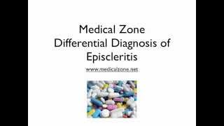 Medical Zone -  Differential Diagnosis of Episcleritis
