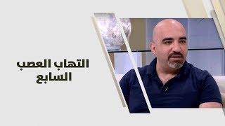 د. خالد عبيدات - التهاب العصب السابع