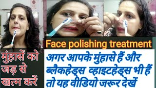 Brush treatment for pimples /मुंहासे( pimples)जड़ से खत्म करें/Face polishing treatment