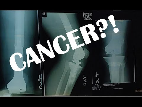 CANCER and my metal knee.  Season 2 Episode 9