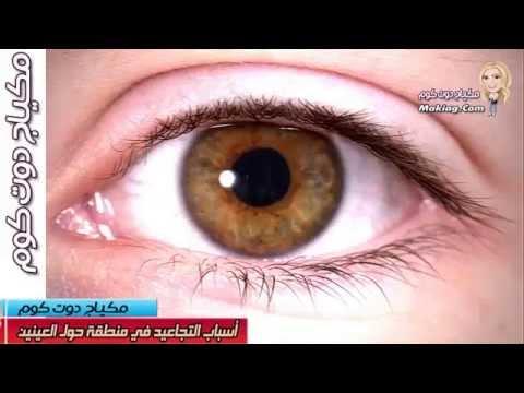 أسباب التجاعيد في منطقة حول العينين | اسباب التجاعيد حول العينين | علاج التجاعيد حول العينين