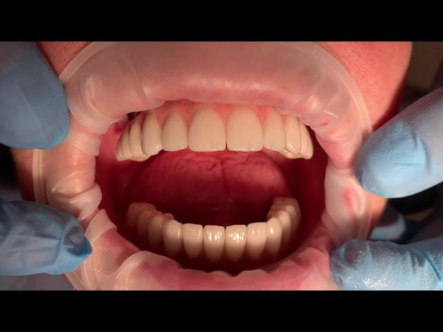 Pacjent dziś uzyskał nowe mosty na implantach.