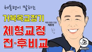 체통령의 체형교정 전후비교 거북목교정기 공개
