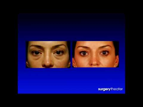 Avoiding Pitfalls in Lower Blepharoplasty - Kami Parsa, M.D.  in Beverly Hills