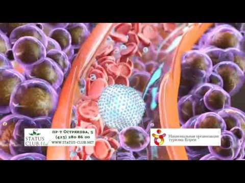 Лечение рака печени за рубежом. Заграничные клиники