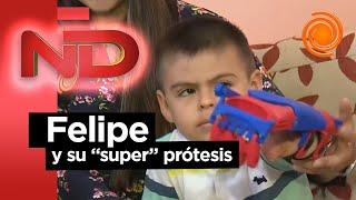 La felicidad de Felipe con su nueva prótesis 3D