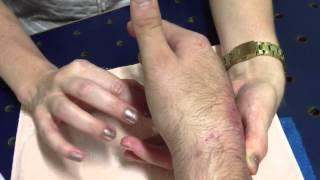 No inchados após ombro cirurgia braço e mão