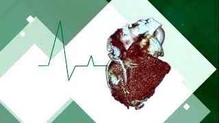 What is Atrial Fibrillation or irregular heart beat?