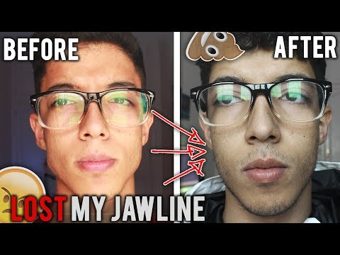 How I Lost My Jawline 😞